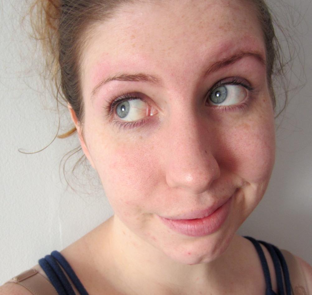 Acne Scar Treatment Bio Oil Ingestion